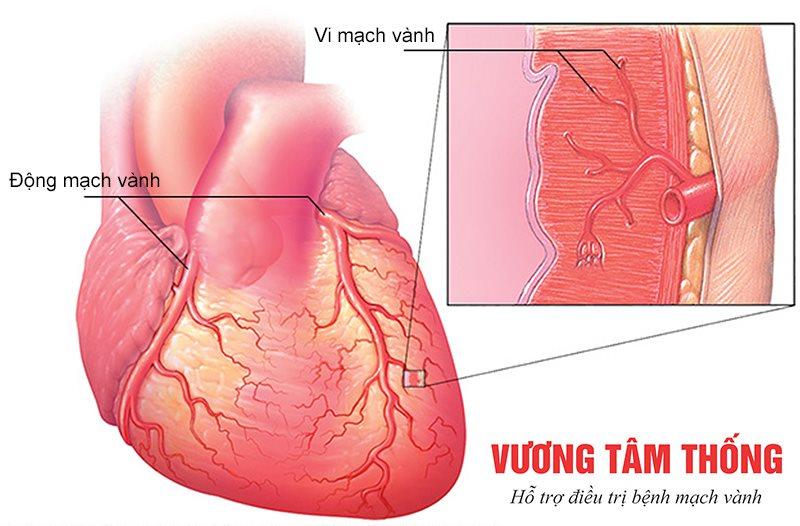 Các mạch máu nhỏ co thắt trong bệnh vi mạch vành
